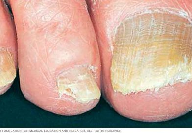Nail Fungus – Symptoms, Causes and Treatment